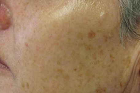 pigmentation-before