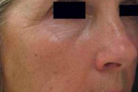 wrinkles-after