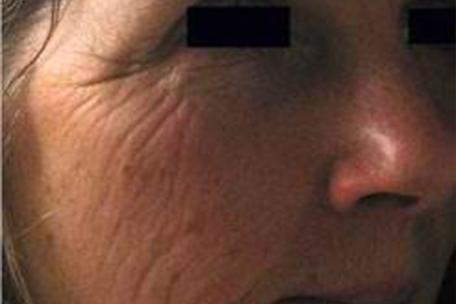 wrinkles-before